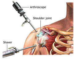 shoulder-arthroscopy1
